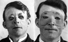 First World War soldier who became the first person to undergo plastic surgery    http://www.telegraph.co.uk/news/uknews/2636507/Pictures-of-first-person-to-undergo-plastic-surgery-released.html