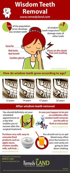 http://www.remedyland.com/2013/05/what-to-eat-after-wisdom-teeth-removal-wisdom-teeth-removal-recovery-time.html Wisdom teeth is the final tooth in your mouth. In certain cases these types of teeth could be a helpful for mouth if there are healthful and properly in line, however more often, they are misaligned and demand removal #WisdomTeeth #WisdomTeethRemoval ==========================  Warning to all scrapers, do not change source and do not try to modify infographics