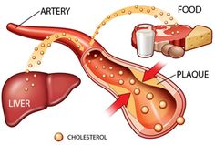 6 Steps to Lower Cholesterol