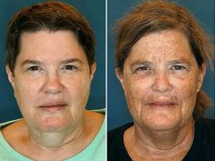 """These identical twins show what """"lifestyle"""" can do to your skin...wear sunscreen every day, eat well, try not to smoke and choose a really great skin care routine!  www.judymikeska.myrandf.com"""