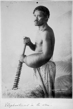 Andrew, Thomas, 1855-1939. Man with elephantiasis of the arm. Cusack-Smith, Thomas Berry (Sir), 1859-1929 :Photographs of Samoa. Ref: PA1-o-...