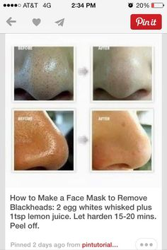 This Face Mask Can Remove Black Heads