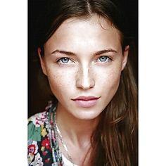 beautiful freckles - wunderschöne Sommersprossen