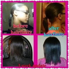 hairfinity before and after
