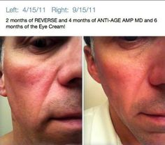 The client is using Rodan + Fields reverse and anti age products combined. Come find out about Rodan & Fields Clinical Skin Care Today. These are the same two dermatologists that created the Proactiv line.  Come check out the products here: https://kberney.myrandf.com/Shop/Anti-Age