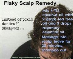 Dandruff remedy....since the only shampoo that ever worked for me was discontinued and I cant even find old bottles on eBay, Im going to try this. Wish me luck!