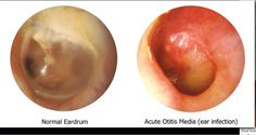 Normal versus infected middle ear (view of the TM)
