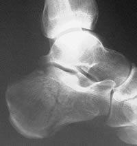 Calcaneus Fracture