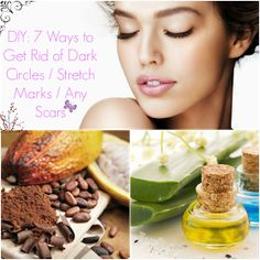DIY Beauty Tutorials: DIY: 7 ways to get rid of dark circles/ANY type of scar/Stretch Marks.