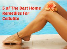 5 of the Best Home Remedies for Cellulite