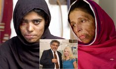 Katie Piper's surgeon and his mission to save the acid attack victims who have been 'burned alive' January 2013