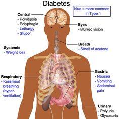 Best Herbal Remedies For Diabetes