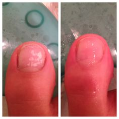 Get rid of that nasty undernail: 1. soak feet in isopropyl alcohol 2. Let dry for 1 minute 3. buff for 2 minutes