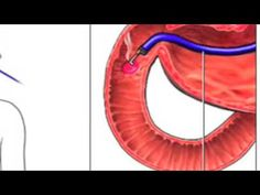 Celiac Disease (very good short video)