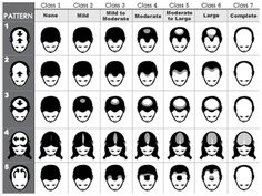 Male Pattern Baldness: psychological factors & best hair loss recovery
