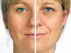 Home Remedies for #Wrinkles on Face And Eyes