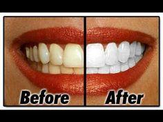 1 vez por semana hasta conseguir el resultado deseado. 1 poco de pasta de dientes 1 cucharadita bicarbonato 1 cucharadita agua oxigenada 1/2 cucharadita agua