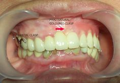 Dentists & Dental Technicians come directly to you! 2-3 Appointment Turnaround time on new Dentures; Repair or Reline Denture Appliances Same Day ...
