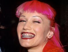 Gwen Stefani rocking braces and pink tresses