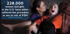 In the U.S.!!!! http://www.orgasmicalmedicine.com/blog/fgm-female-genital-mutilation