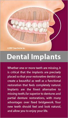 dental implants education