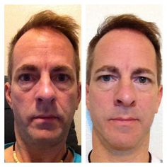 Ross's Real Results with NeriumAD!