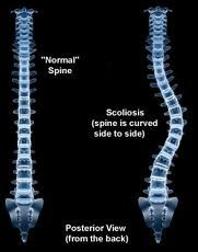 normal spine and curved spine, scoliosis
