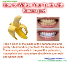 Banana teeth whiter.. yes.