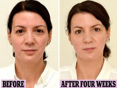 An all natural water makeover! Increasing water consumption helped reduce the look of dark circles and cellulite, and helped her regulate her weight. #water #natural #health