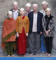 Albino Family from India