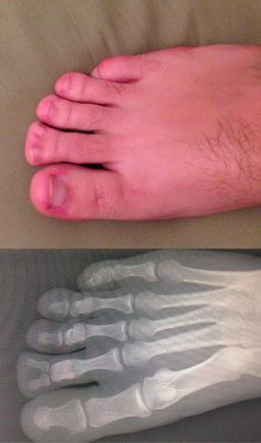 I will never hate my feet again! can you imagine?!