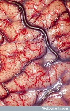 Living BrainCredit: This image of a living human brain taken during surgery won the 2012 Wellcome Trust Award for biomedical photography.