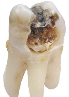 This is a cavity in between the teeth, likely due to not flossing.