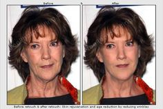 Age defying skin retouching example, before & after. Photo retouching services to remove wrinkles, blemishes, sagging jowls, shrivelled lips.  http://www.freephotoediting.com/samples/look-younger/026_remove-wrinkles-and-blemishes-from-a-digital-photograph.htm