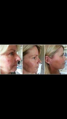 #Nerium #Beforeandafter ##Wrinklesgone http://Dereknmelissa.nerium.com