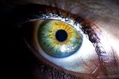 #heterochromia  #central_heterochromia #cat_eyes_human