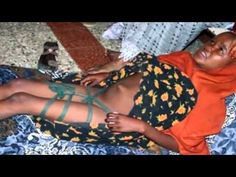 ▶ (FGM) Female Genital Mutilation Cutting is a violation of human rights..
