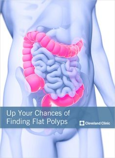 Have you ever heard of a FLAT polyp? Skilled docs need to spot all #polyps in #colonoscopy. #coloncancer