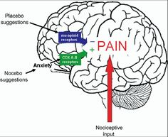 The Nocebo Effect - A review of how 'the anticipation and expectation of a negative  outcome may induce the worsening of a symptom.' For ex, anticipation of pain can enhance its magnitude (As opposed to the placebo effect where a more positive expectation can lower perceived pain.) by F. Benedetti et al., Neuroscience 147 (2007) 260 - 271 via mindblog.dericbownds.net #Nocebo #Placebo #F_Benedetti #mindblog_dericbownds posit expect, nocebo effect, placebo effect