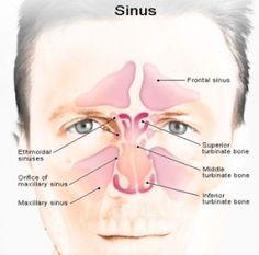 Herbal Remedies For Sinus Congestion