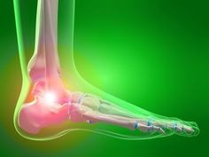 Do You Have Achilles Tendon Pain?