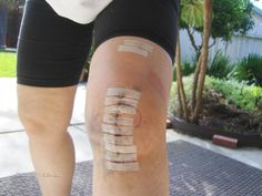 Here is my right knee one day after Makoplasty.   5 weeks later the left knee looked just like it.