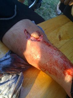 Polo injury by chasmchasm, via Flickr