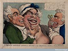 V0012069 N. Dubois de Chémant demonstrating his false teeth.  © Wellcome Library, London.