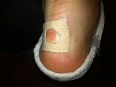 Blister treatment while on the move | Here is one way to treat those fluid filled sacs on your foot while marching along to your bugout location