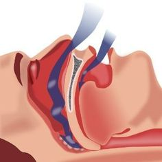 Herbal Remedies For the Treatment of Sleep Apnea