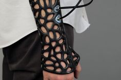 3D Printed Cast Speeds Bone Recovery Using Ultrasound