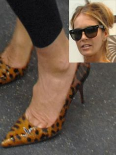 Elle Macpherson's bunion! Oh dear Bunions - ouch looks painful!! if you would like to be able to wear shoes, sandals and boots again without being in pain take a look at Meanfeet's range of Wide Fitting Bunion Relief Footwear at www.meanfeet.com
