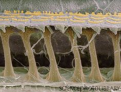Inner ear hair cells. Coloured scanning electron micrograph (SEM) of sensory hair cells in the cochlea of the inner ear. The crescent-shaped arrangements of hairs across top are the stereocilia. Each crescent lies atop a single cell. Magnification: x1000 when printed at 10 centimetres wide.