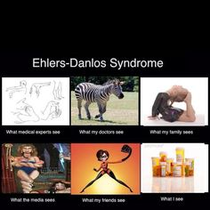 Ehlers Danlos syndrome.